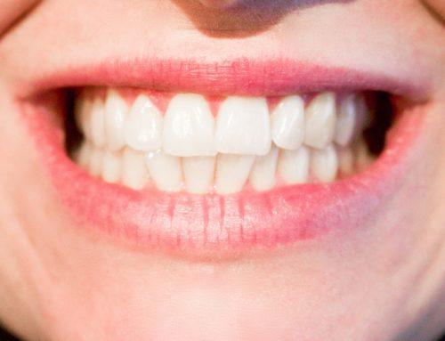 Parodontite cos'è e come curarla