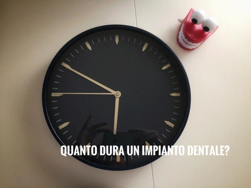 quanto dura impianto dentale