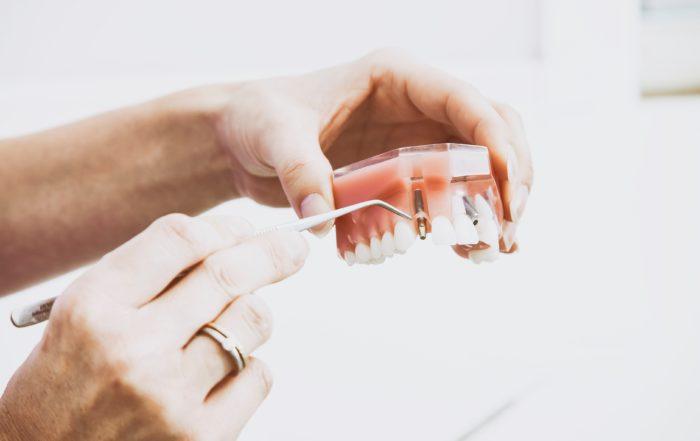 prezzo impianto dentale signolo