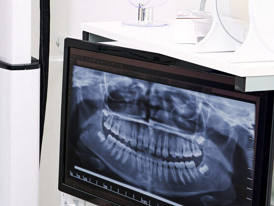 ortopanoramica dentale parma